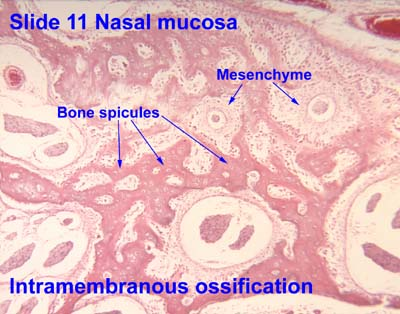 Intramembranous ossifi...