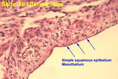 Uterine Tube Slide Epithelium