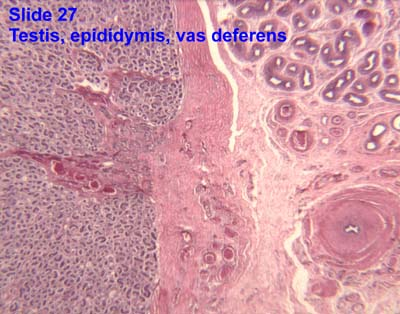 Vas Deferens Diagram Male Reproductive