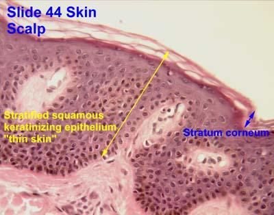 44_02a epithelium