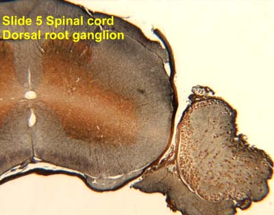 Spinal Cord Cross Section Slide Slide 5 Spinal Cord And Dorsal
