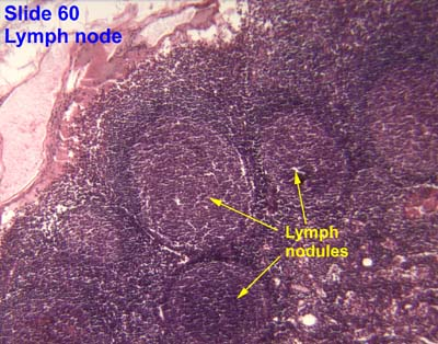 Lymphoid