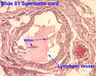 pampiniform plexus histology - photo #7